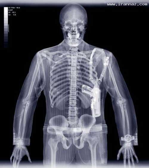 عکس های بسیار شگفت انگیز از عکاسی با پرتو ایکس ، www.irannaz.com