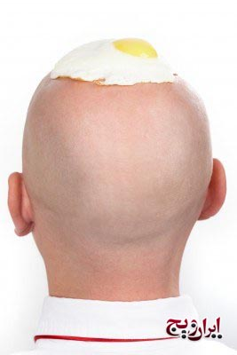 درمان گیاهی ریزش مو در مردان