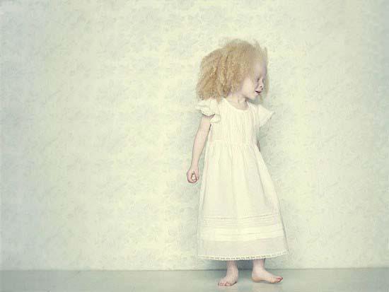 عکس های متفاوت از مبتلایان به بیماری زالی