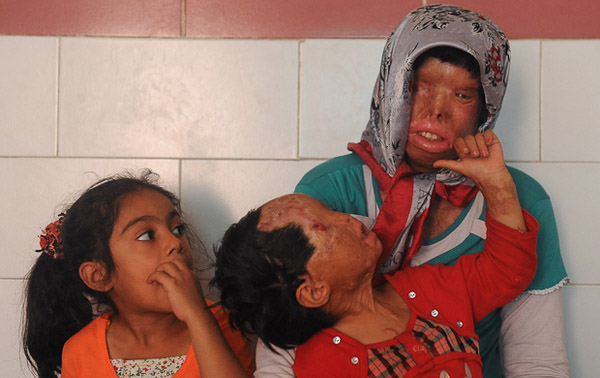 ملاقات با مادر و دختر قربانی اسیدپاشی