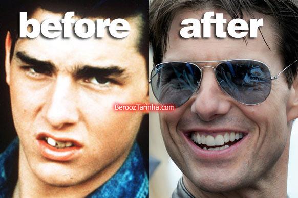 چهره باورنکردنی این ستاره ها قبل و بعد از مشهور شدن