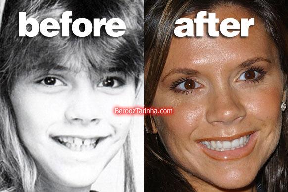 teeth posh چهره باورنکردنی این ستاره ها قبل و بعد از مشهور شدن