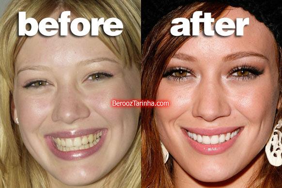 teeth hilary چهره باورنکردنی این ستاره ها قبل و بعد از مشهور شدن