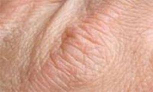 چند توصیه به افراد مبتلا به خشکی پوست همراه با خارش