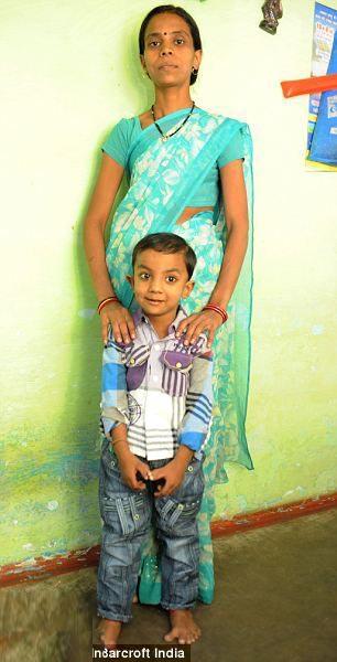 تصاویر پسر بچه ای با دست و پاهای عجیب
