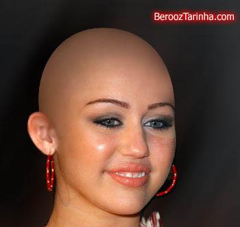Miley Cyrus balderized سوپر استار های معروف را کچل ببینید (عکسهای جالب)