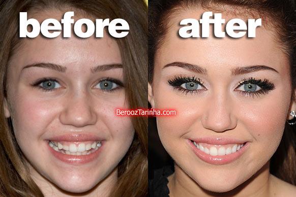 teeth miley چهره باورنکردنی این ستاره ها قبل و بعد از مشهور شدن