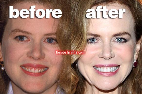 teeth nicole چهره باورنکردنی این ستاره ها قبل و بعد از مشهور شدن