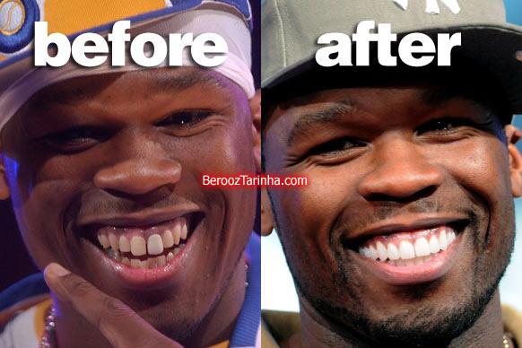 teeth 50 چهره باورنکردنی این ستاره ها قبل و بعد از مشهور شدن