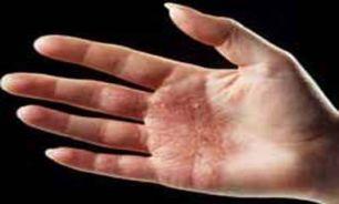 تاثیر شست و شوی مداوم پوست بر سلامت آن