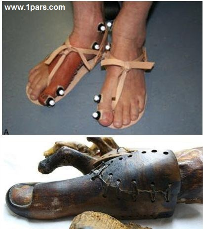 Old prosthesis