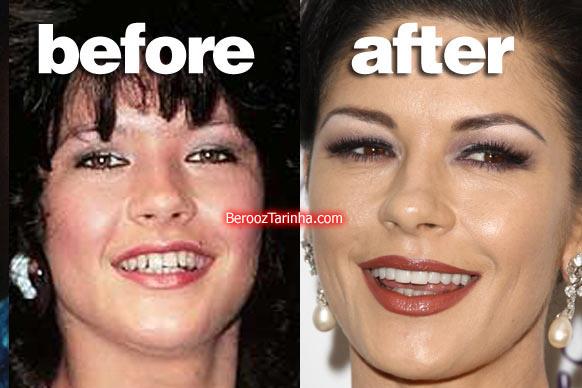 teeth zeta چهره باورنکردنی این ستاره ها قبل و بعد از مشهور شدن