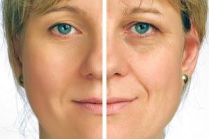بهداشت و زیبایی: کرم های ضد پیری، موثر یا ناکارا؟