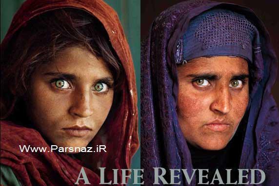 www.parsnaz.ir - این دختر 20 سال پیش بخاطر چشمان جادویی مشهور شد