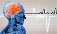 سکته مغزی خاموش و وقوع بیماری پارکینسون