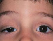 کاهش و درمان افتادگی پلک چشم