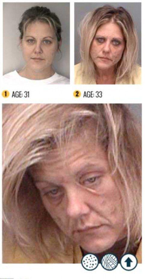 تصاویر تکان دهنده از تاثیر مواد بر چهره افراد