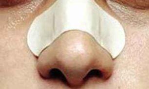 انسداد بینی نشانه چیست؟