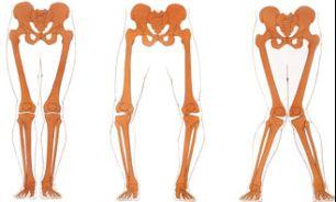 درمان پاهای پرانتزی و ضربدری