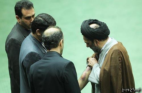 کبودی بدن نماینده روحانی مجلس + عکس