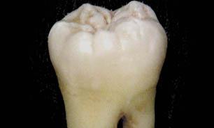 دندان های بیولوژیکی را جایگزین دندان خراب کنید