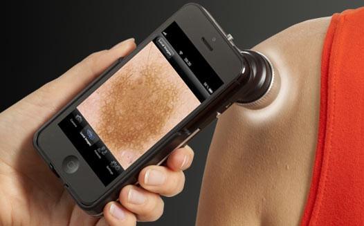 افزایش اعتماد به تشخیص بیماریهای پوستی از طریق تلفنهمراه
