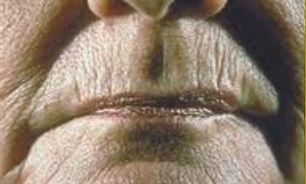 آیا از تأثیر پودر تالک روی پوست آگاهی دارید؟