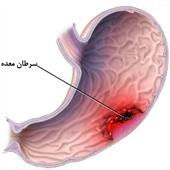 غذاهای سرخ شده، دودی، کبابی و نمک سود، عامل سرطان معده