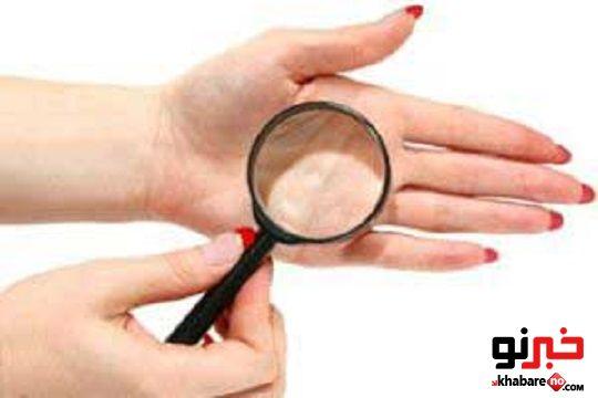 ماسک گیاهی برای درمان پوسته دست