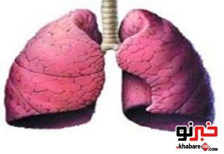خارج کردن سیم نیم متری از ریه یک بیمار