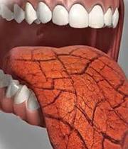 خشکی دهان و خرابی دندانها