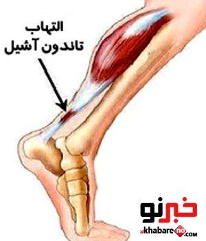 Image result for توضیحات التهاب تاندون