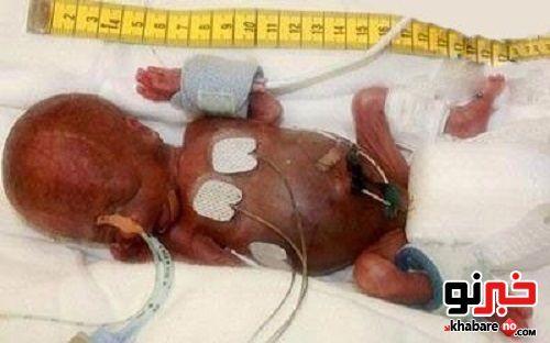 کوچکترین نوزاد متولد شده در دنیا