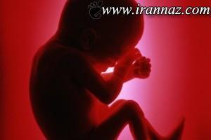 کشف جنین در کیف این دختر خبرساز شد (عکس)