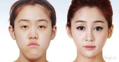 تصاویر: قبل و بعد از عمل زیبایی