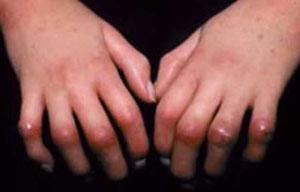 آشنایی با بیماری اسکلرودرمی