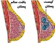 کیست پستان