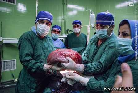 تومور شکمی