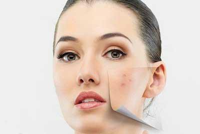 Vakonesh.Com   c9f0f895fb98ab9159f51fd0297e236d با چربی پوست صورت خود چه کنیم؟