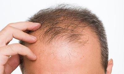 Vakonesh.Com   8f14e45fceea167a5a36dedd4bea25432 بهترین راه درمان ریزش مو