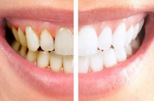 لق شدن دندان ها با جرمگیری