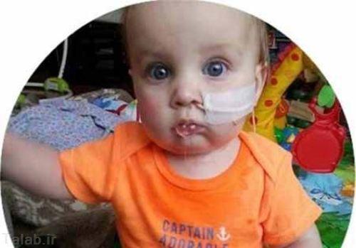 کودکی توانایی باز کردن دهانش را ندارد (عکس)