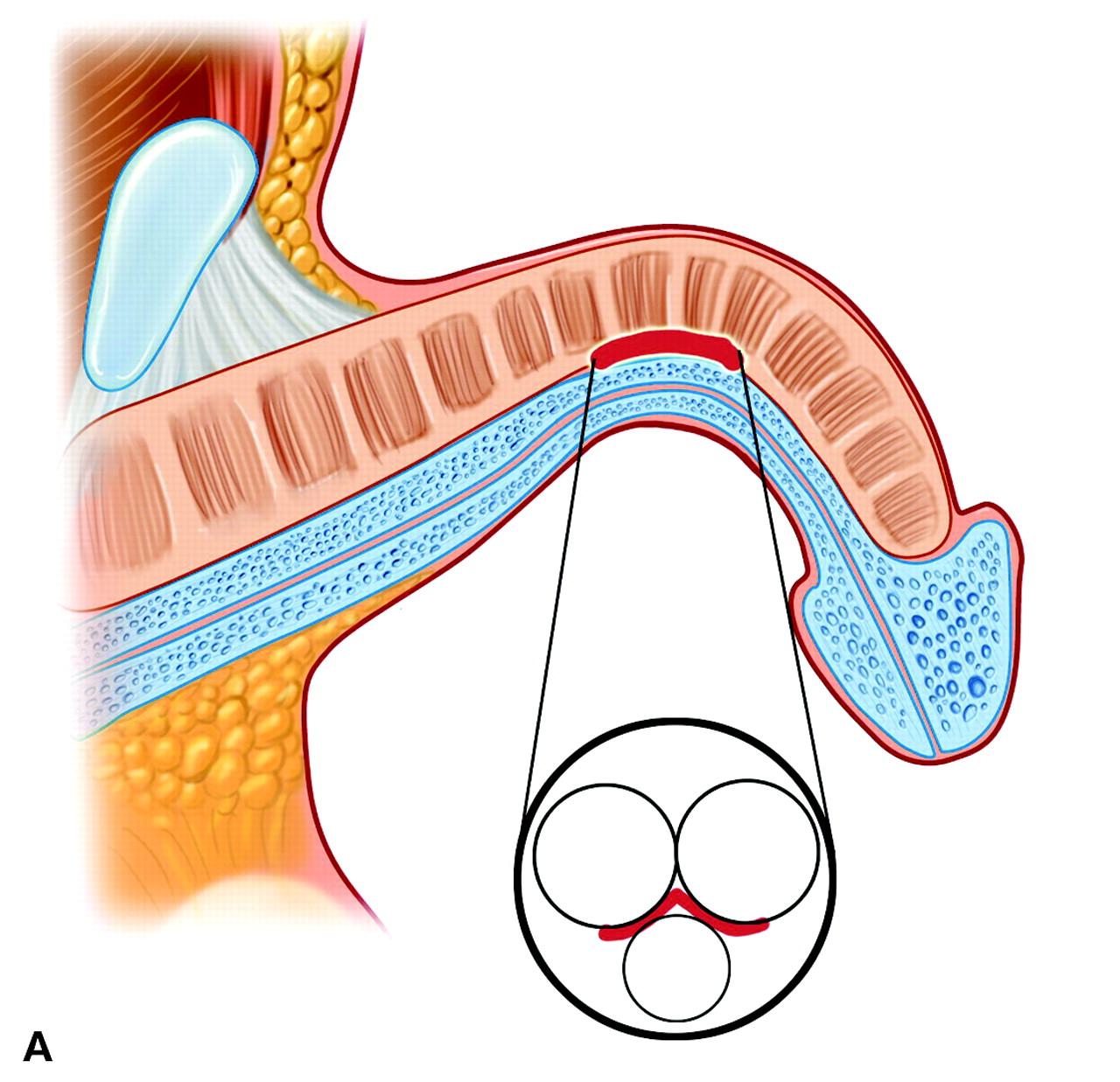 درمان کجی آلت تناسلی یا بیماری پیرونی