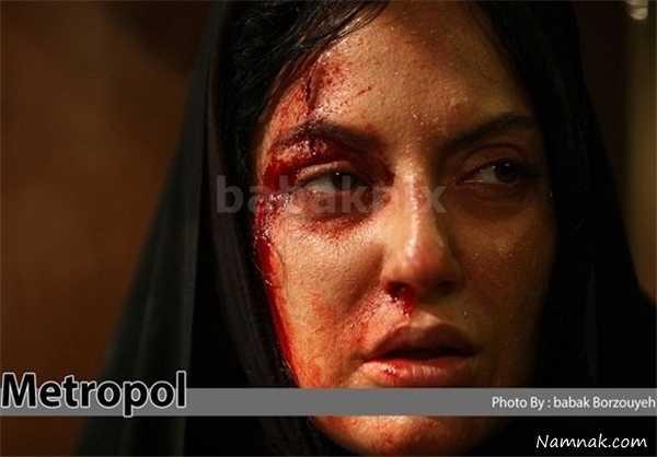 گریم مهناز افشار در متروپل ، حمله اراذل به مهناز افشار ، عکس های حمله به مهناز افشار
