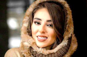 بازیگر زن جوان درمورد جراحی زیبایی برروی صورتش توضیح داد + عکس