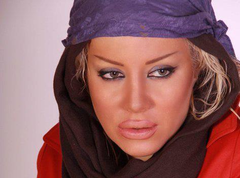 بیکار شدن بازیگر زن ایرانی به دلیل تزریق ژل به لب هایش! +عکس