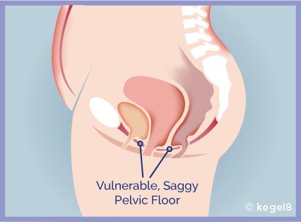 weak-pelvic-floor.png