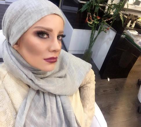 قیافه جدید شراره رخام بعد از تخلیه ژل لب هایش + عکس