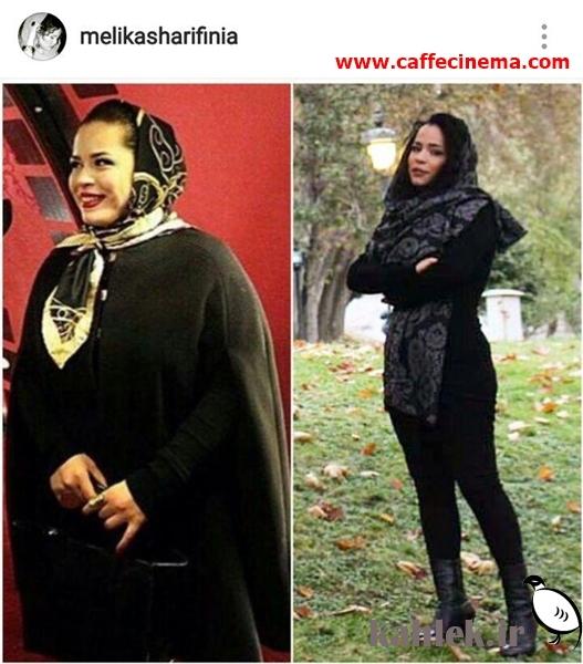 ملیکا شریفینیا، بازیگر سینما و تلویزیون، با انتشار تصویری، مفصل از تجربه بیست کیلو لاغر شدناش گفت