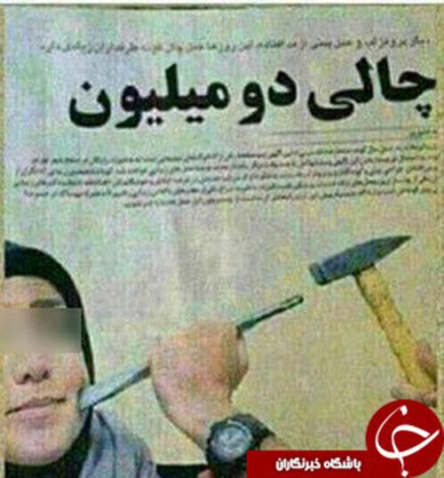 قیمت چال گونه در ایران +عکس